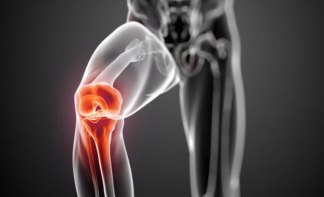 Bolečina v kolenih
